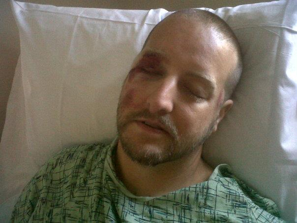 This is how I looked the morning after my accident